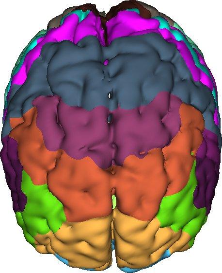Brain Result