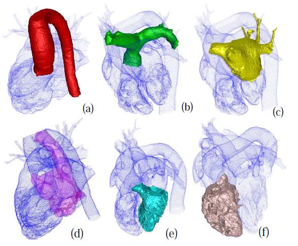 heart-segmentation